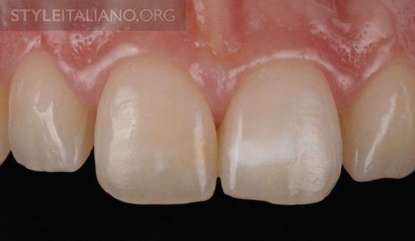 white spot infiltration bleaching style italiano