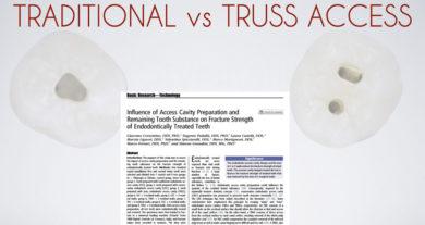 Traditional vs Truss Access style italiano styleitaliano